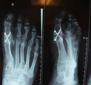 exemple-orthopedie-chirurgie-92